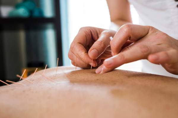 woman getting acupuncture treatment on back