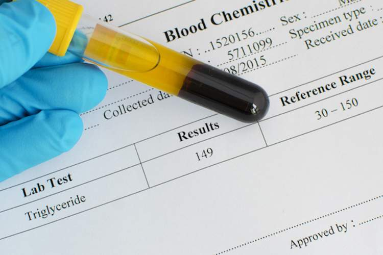 Blood sample and blood test results.