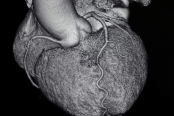 CT image of heart