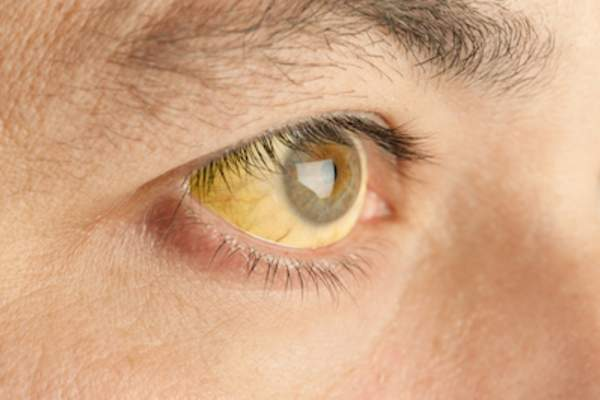 Close-up of jaundice eye.