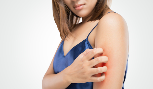 Woman scratching upper arm.