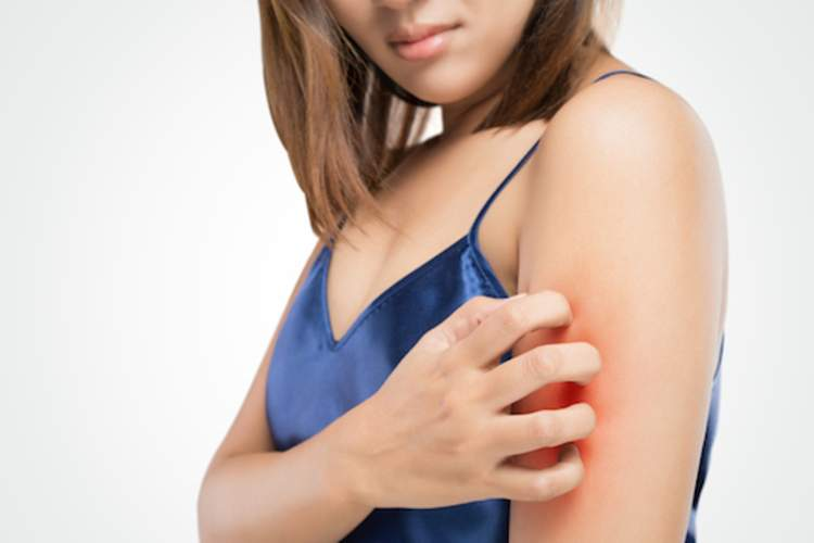 Woman scratching upper arm