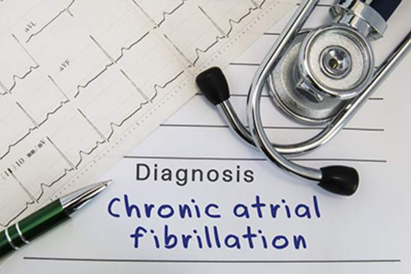 Atrial fibrillation diagnosis.