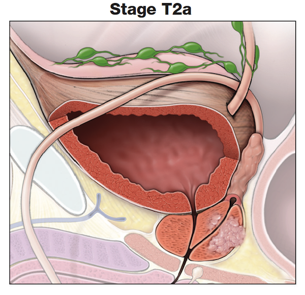 Making Sense of Prostate Cancer Tumor Stages-Stage T2a-prostate