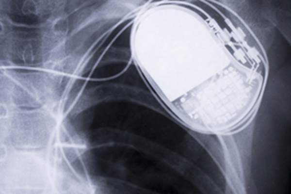 implanted pacemaker image