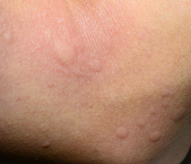 Best Treatments for 7 Skin Rashes | HealthCentral