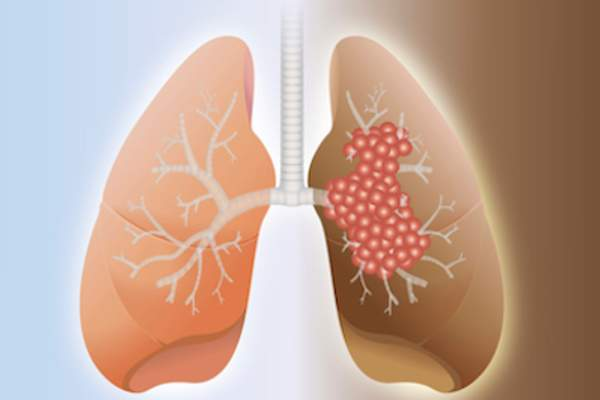 Healthy lung and cancer lung an illustration