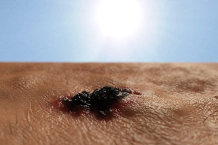 melanoma in the sun