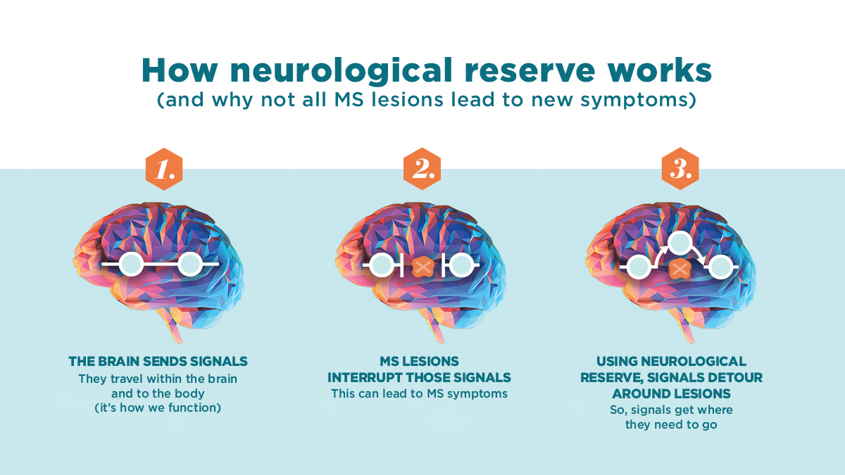 "INFOGRAPHIC: Neurological Reserve/how the brain can ""re-wire"" itself"