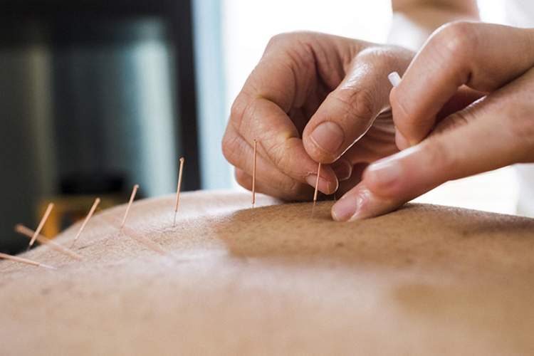 Acupuncture treatment.
