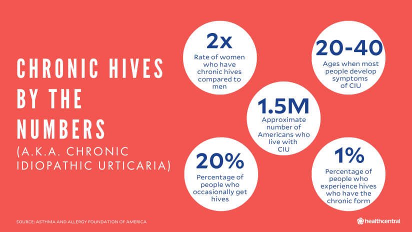 Chronic hives statistics: rate of women with CIU compared to men, age when people develop symptoms of CIU, number of Americans with CIU, percentage of people who get hives, percentage of people who get chronic hives