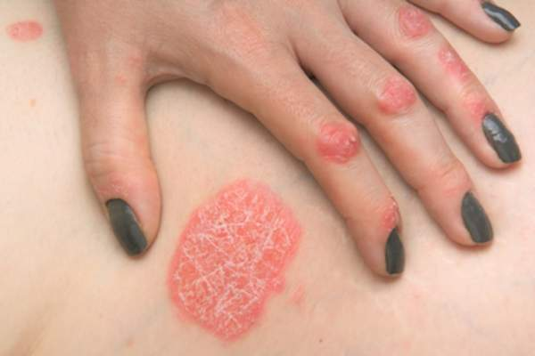 Woman showing psoriasis patches on side and hand.