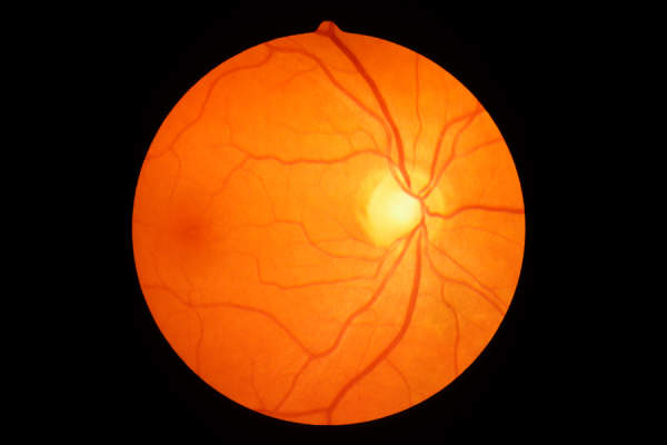 Human optic disc, retina and blood vessels