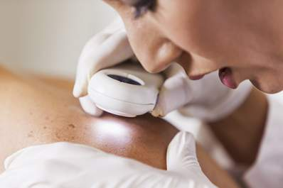 Dermatologist searching for signs of skin cancer.