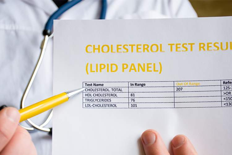 Doctor's order for cholesterol test.