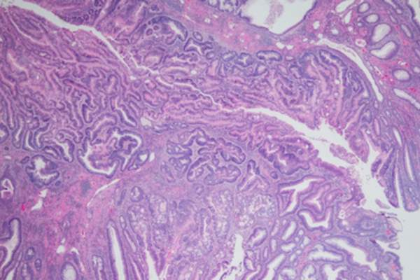 Adenocarcinoma of colon arising in a tubulovillous adenoma.
