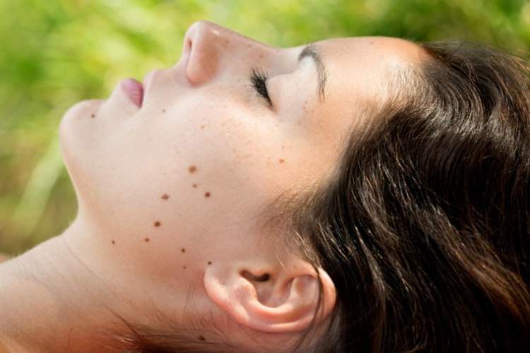 Woman with moles on her face