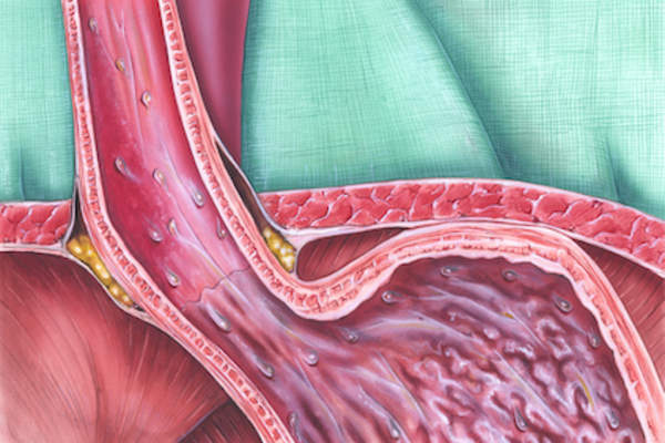 where the esophagus meets the stomach.