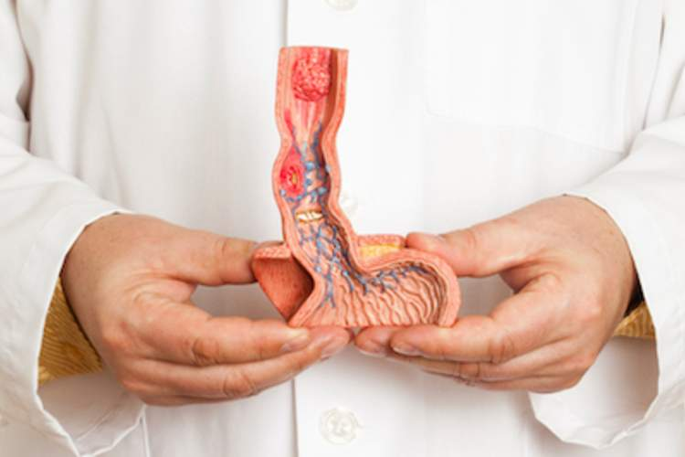 Doctor holding model of esophagus.
