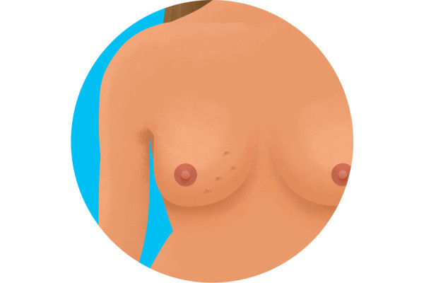 Illustration of dimples on breast