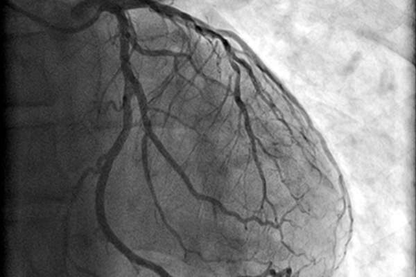 Angiogram and heart.