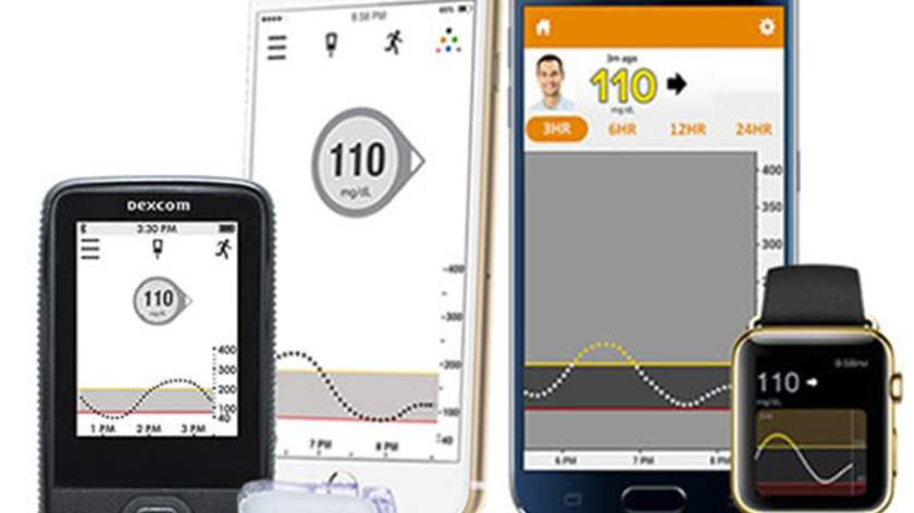 Diabetes: Getting Started with a Continuous Glucose Monitor