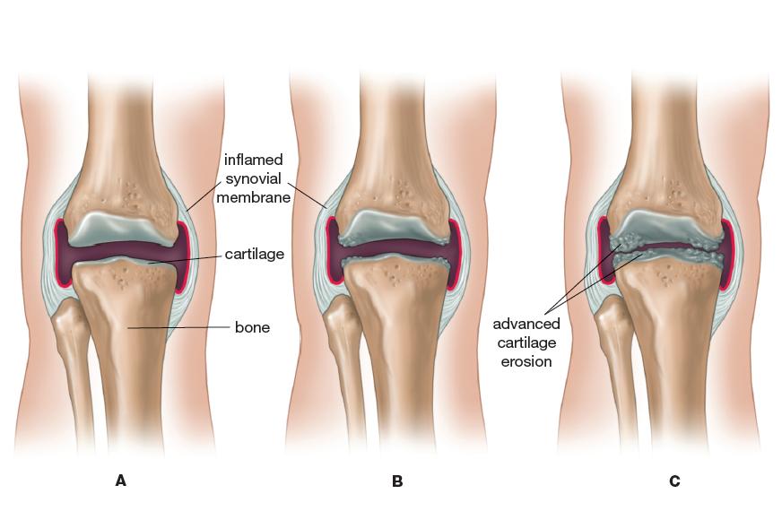 Mengatasi sakit lutut ringan