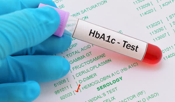 HbA1c blood test traditional done in lab.