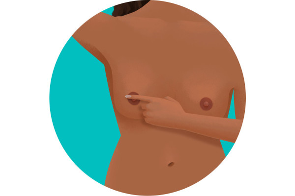 Illustration of itchy nipple
