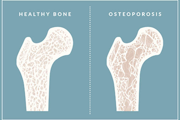 Difference between a healthy bone a a bone with osteoporosis.