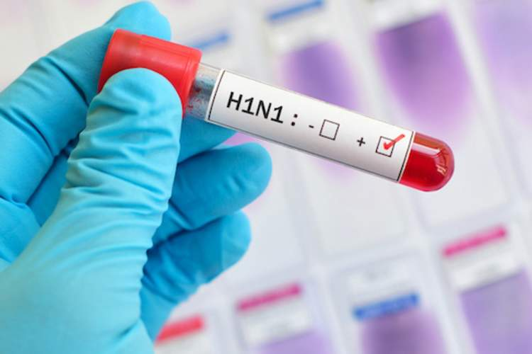 H1N1 blood test, marked as positive for virus.