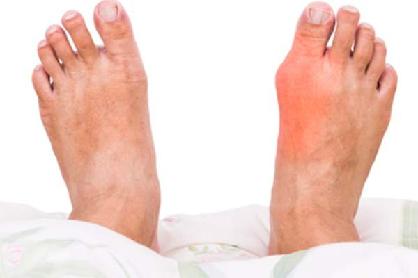 Right foot with gout related swelling.