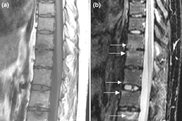 Psoriatic arthritis spine