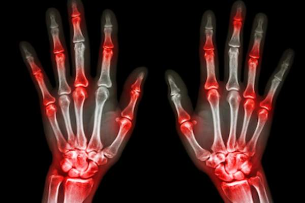 X-ray of hands with highlighted joints