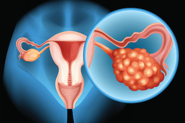 Ovarian cancer illustration.