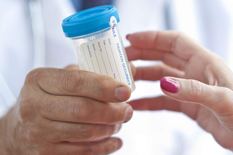 Urine sample container for a drug test.