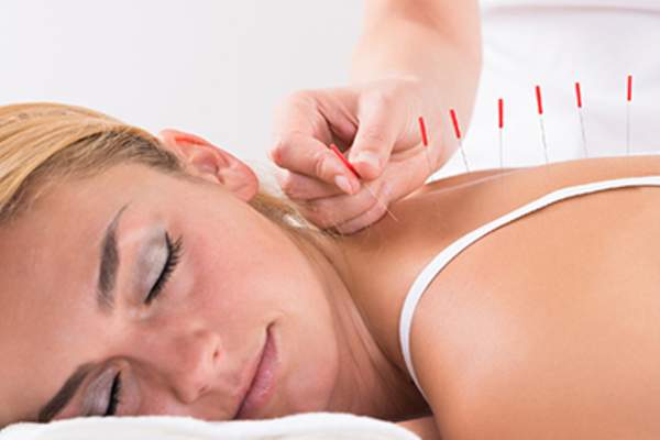 Young woman undergoing acupuncture.
