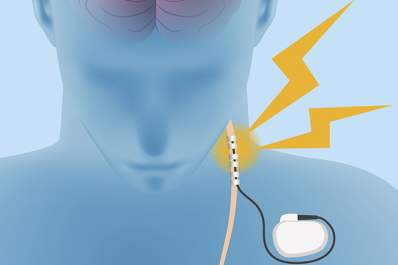 Vagus nerve stimulation.