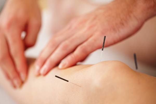 Acupuncture treatment on the legs and knees.