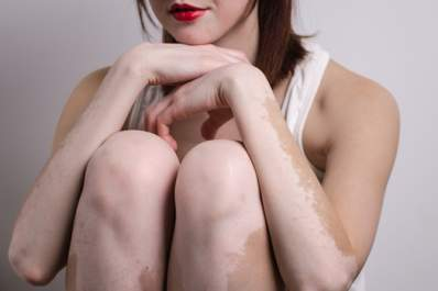 Girl with vitiligo on arms and legs.