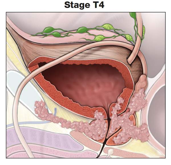 Making Sense of Prostate Cancer Tumor Stages-Stage T4-prostate