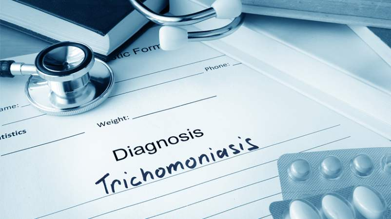 Trichomoniasis diagnosis, STD.