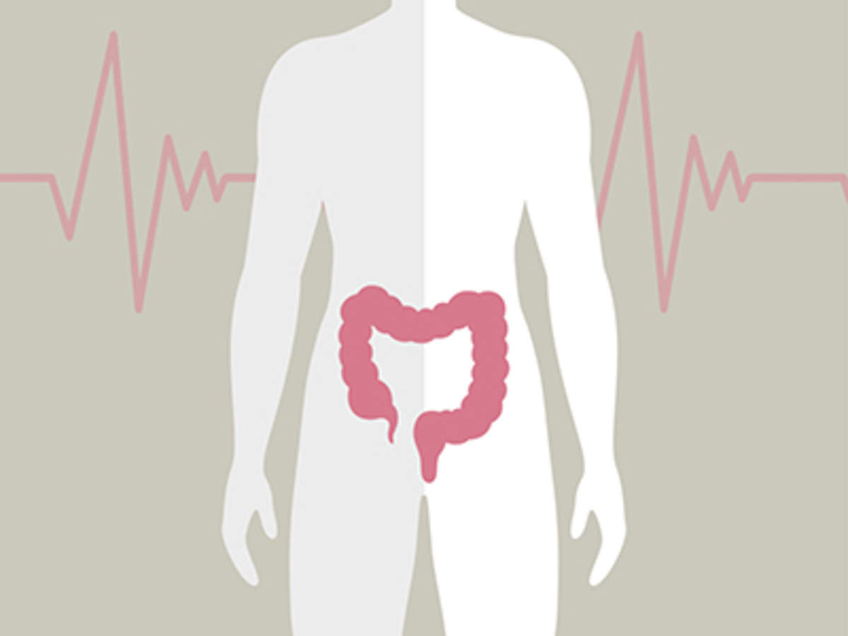 Advanced Colon Cancer 10 Things You Should Know
