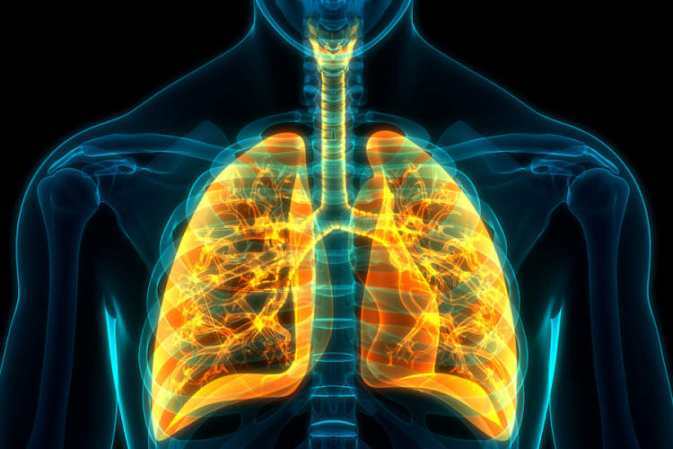lung vulnerability