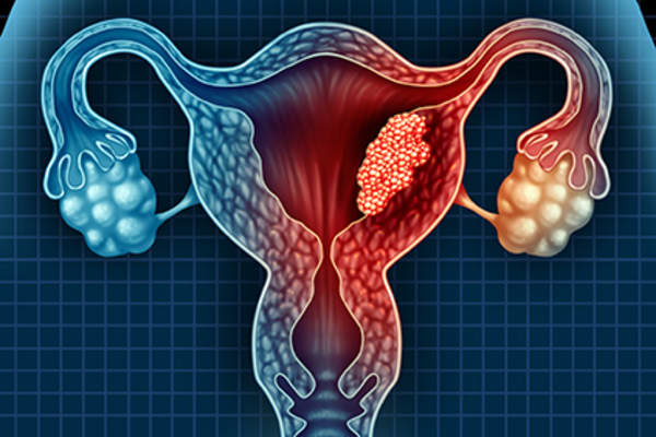 Endometrial cancer image.