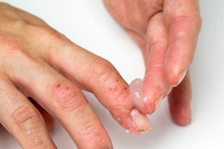 Man applying cream to eczema on fingers.