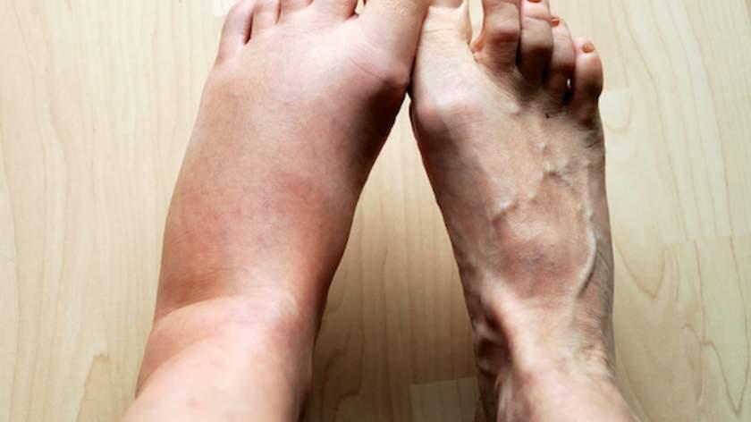 Ask The Expert Link Between Swollen Feet And Nerve Damage