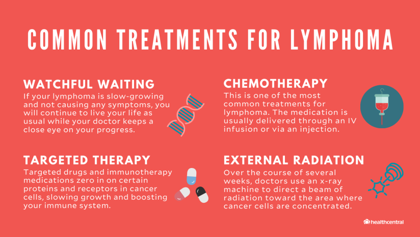 Common lymphoma treatments include watchful waiting, chemotherapy, targeted therapy, and external radiation
