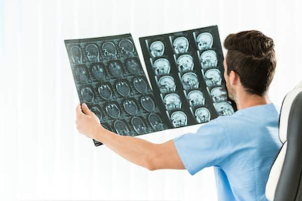 Doctor reviewing head and neck MRI.