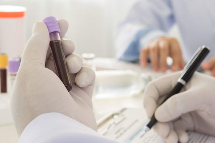 Blood Test May Predict Hypertension